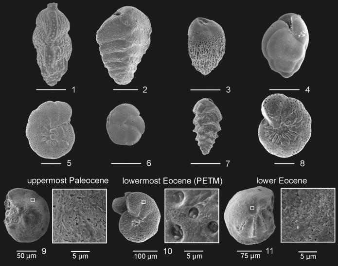 Benthic foraminifera fossils. Pore size changes and so does the size of the creature. distinctness of shape is also different