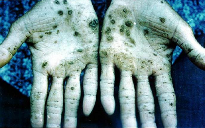 Hands palm up showing skin lesions formed as a result of exposure to high levels of arsenic