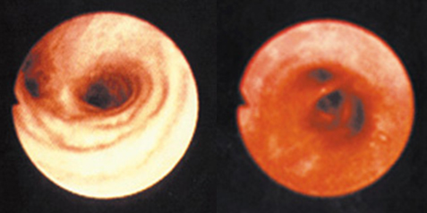 Two photos of the lung's airway. One lung is pale in color, the airway is open and large (healthy airway).  The second lung is bright red and the airway is constricted (inflamed air way).