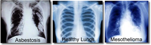 Various effects of asbestos on lungs